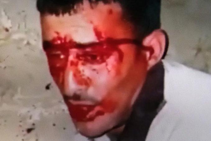 Le visage de Majdi Ikhtat, dans une vidéo prise par ses assaillants - Image via Haaretz